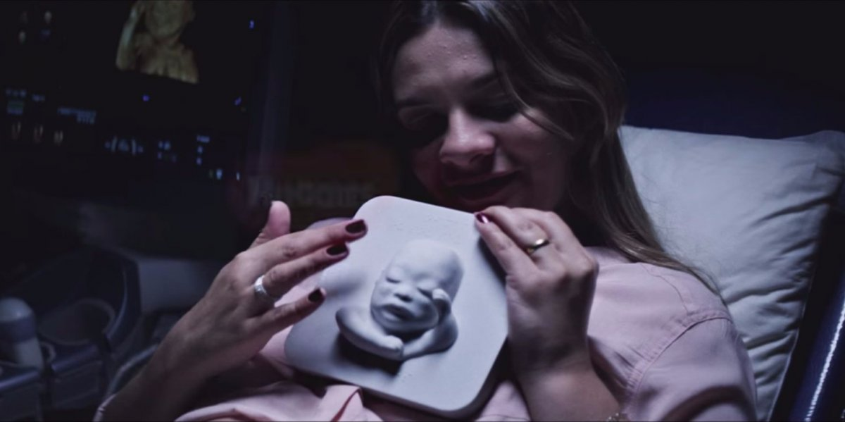 Blind Mother Gets to 'See' Her Unborn Son for the First Time Thanks to 3D Printing