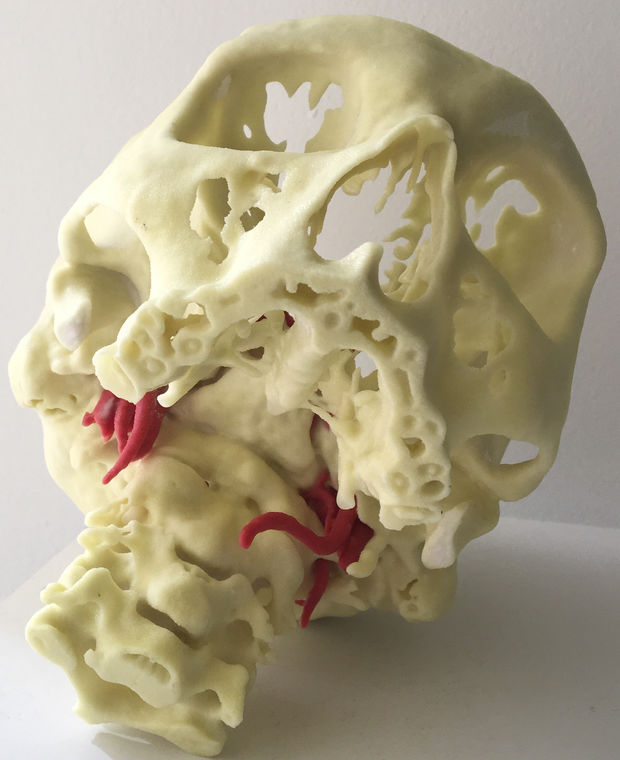 Mount Sinai Hospital Is 3D Printing Human Skulls