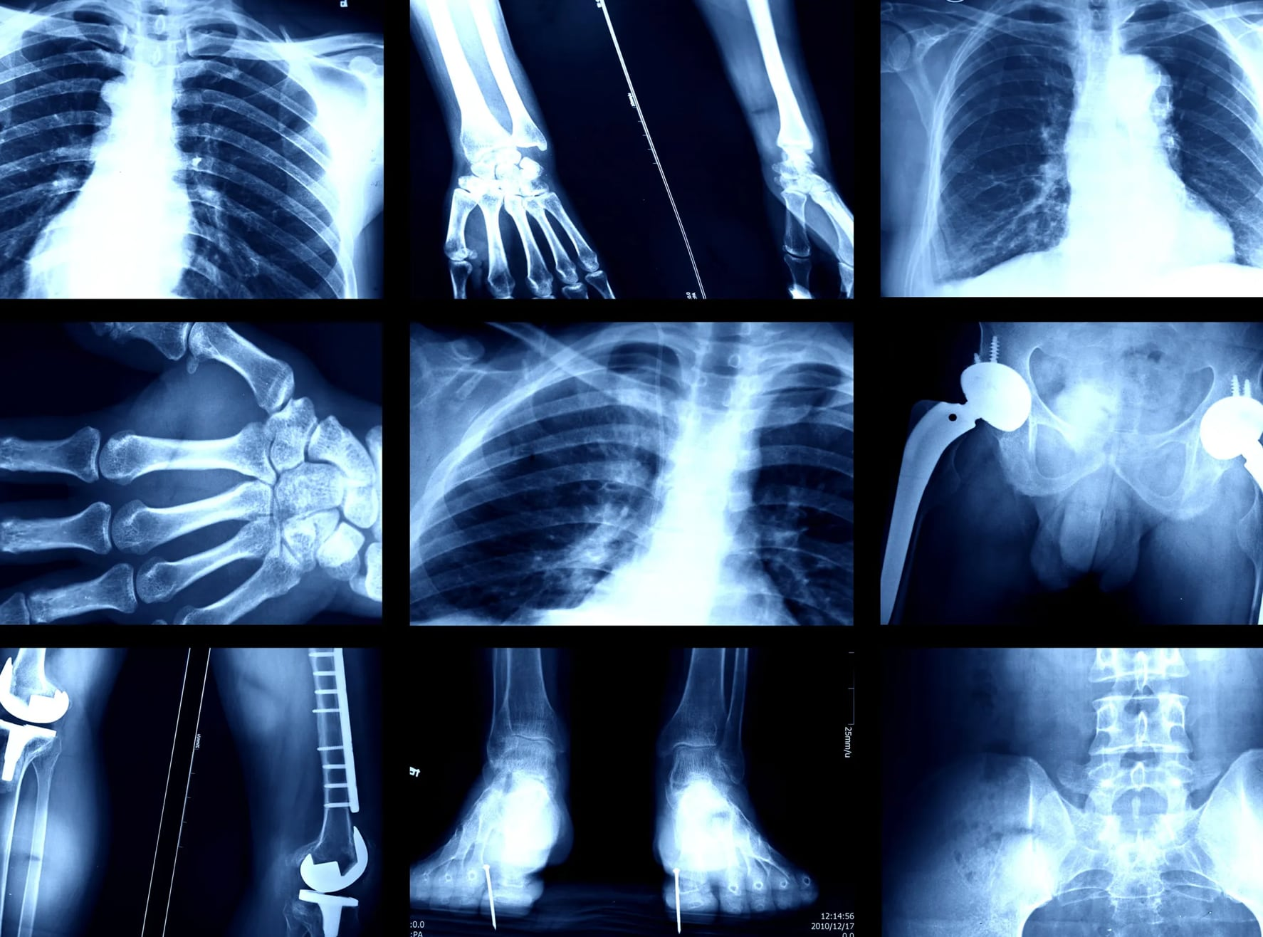 Algorithms Detect Your Race with X-Rays